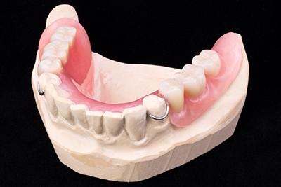 Съемный протез при частичной потере зубов