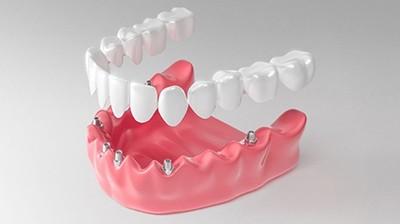 Полная имплантация нижних зубов