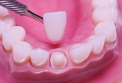 Коронка на передний нижний зуб