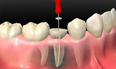 Лечение пульпита одноканального зуба
