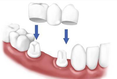 Установка мостовидной конструкции на зубы