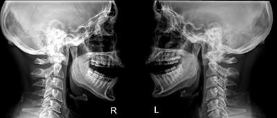 Рентген височно-нижнечелюстного сустава