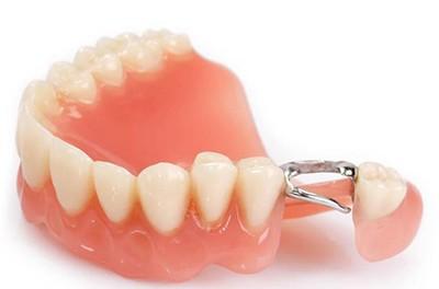 Съемный акриловый протез нижних зубов