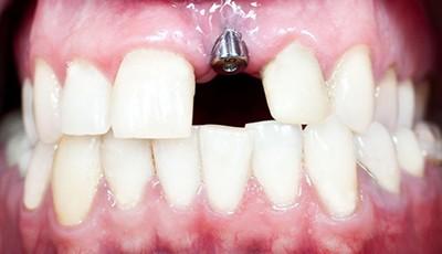 Имплантация переднего зуба верхней челюсти