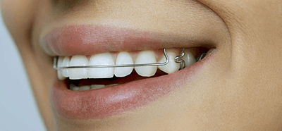 Зубная пластина