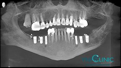 Имплантация жевательных зубов, костная пластика