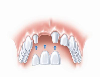 Протезирование при частичном отсутствии зубов