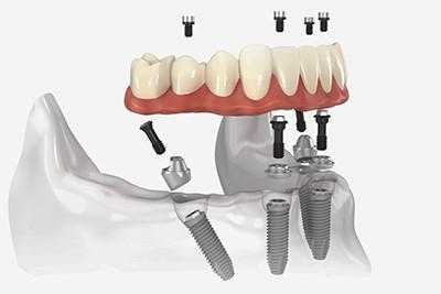 Имплантаты нижних зубов