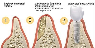 Процедура костной пластики