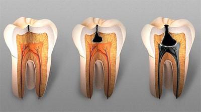 Стадии повреждения зубной эмали до глубокого кариеса