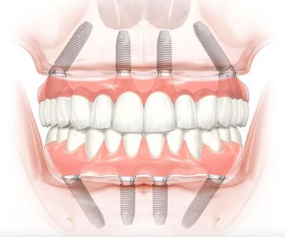 Имплантация зубов все на 4