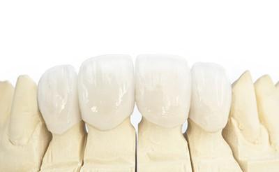 Коронки передних зубов