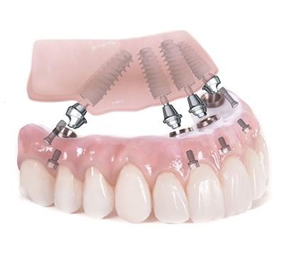 Имплантация при полном отсутствии верхних зубов