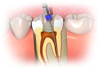 Лечение зуба с запущенным кариесом