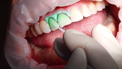 Подготовка зубов к инфильтрации