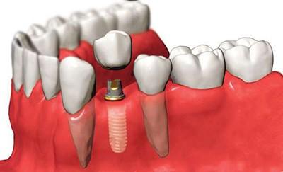 Имплантация нижнего жевательного зуба