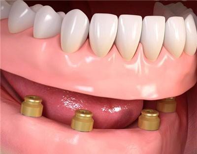 Протезирование нижних зубов
