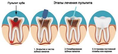 Этапы лечения пульпита