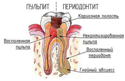 Пульпит и периодонтит