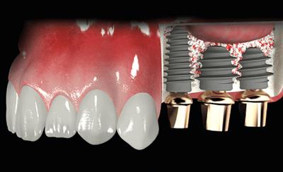 Синус-лифтинг для имплантации зубов