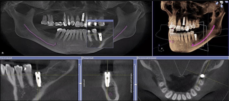 Компьютерная томмография зубов