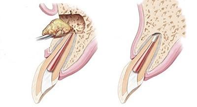 Киста зуба в тканях кости