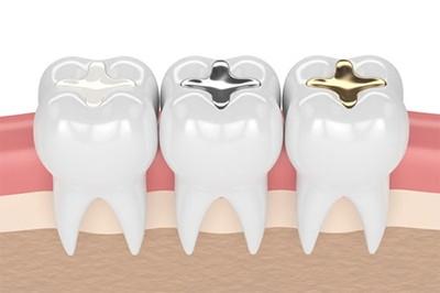 Пломбирование зубов различными материалами