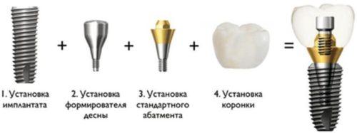 Схема имплантации зубов
